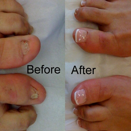 Nail Repair Free Consultation